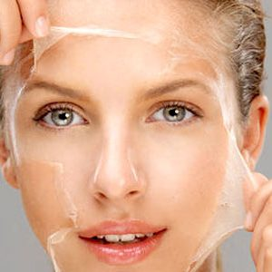 What Can Chemical Peels Do for Your Skin
