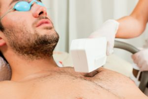 laser hair removal for men barrie Ontario