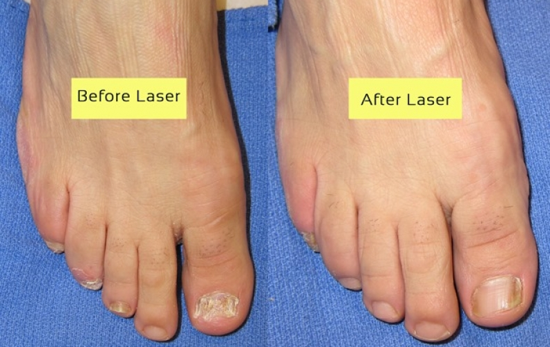 Is Laser Treatment for Nail Fungus Right for You?