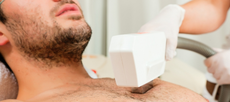 Laser Hair Removal for Men – Learn all about this Must-Have Procedure