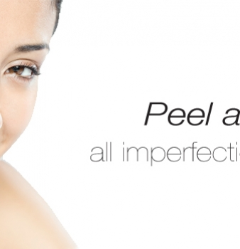 3 Things You Need to Know before Getting a Chemical Peel