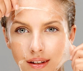 Everything you Need to Know about Chemical Peels