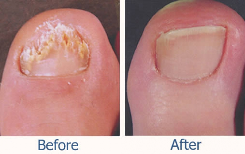 Laser Treatment for Nail Fungus in Barrie, Ontario - Mapleview ...