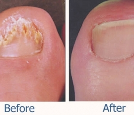Laser Treatment for Nail Fungus in Barrie, Ontario