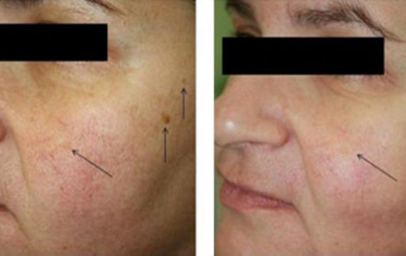 Is OxyGeneo the Right Treatment for your Skin?