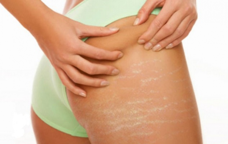 5 Essential Tips On How To Deal With Stretch Marks